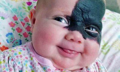 Bambina con voglia sul viso
